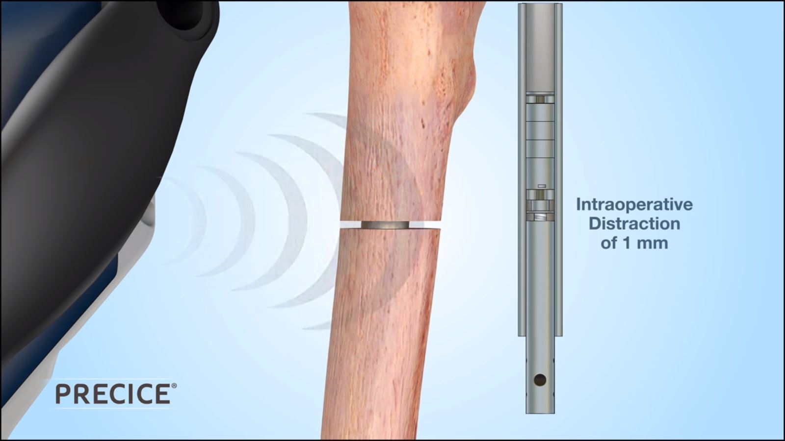 Internal Lengthening